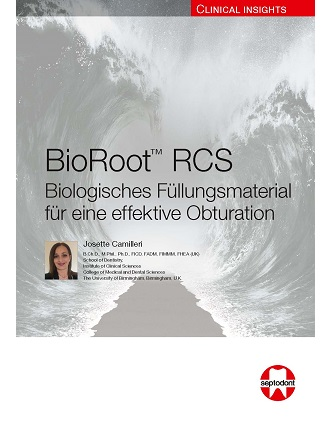 Clinical Insights BioRoot RCS